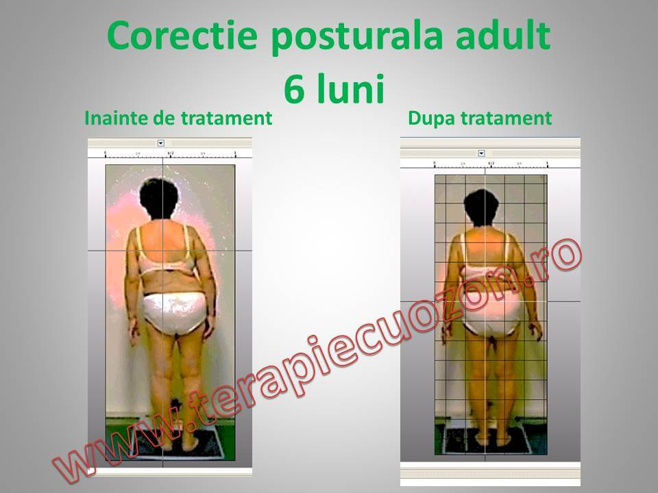 postura before_after (1)