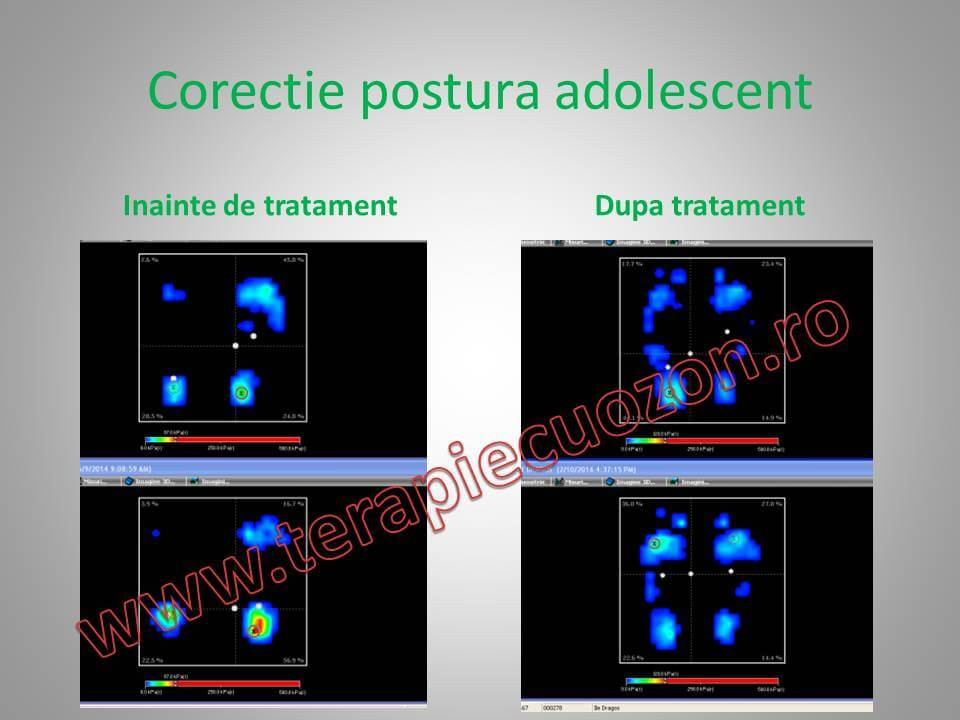 postura before_after (4)